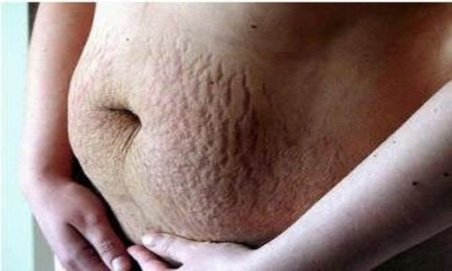 Estrías abdominales