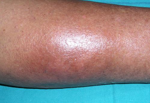 pierna celulitis infecciosa