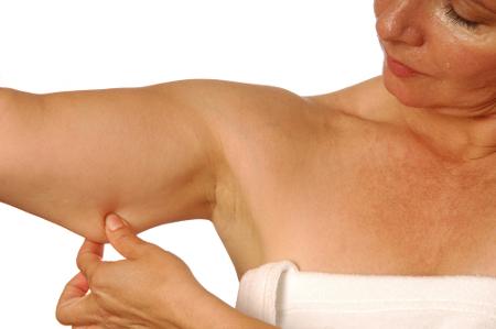 Cómo combatir la flacidez en los brazos