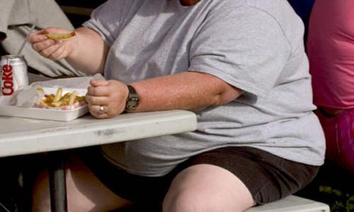 En qué consiste la obesidad mórbida