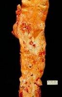 arterioesclerosis.jpg