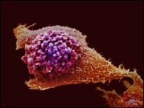 cancer-prostata-obesidad-secuelas-enfermedades-genitourinarias.jpg