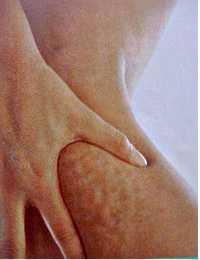celulitis-piel-naranja-laser-lipolisis-solucion-clinica-cirugia.jpg