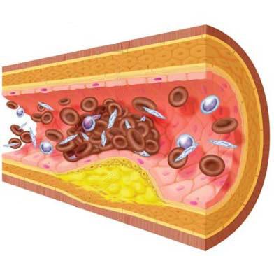 Secuelas y enfermeades derivadas de la obesidad: Problemas metabólicos