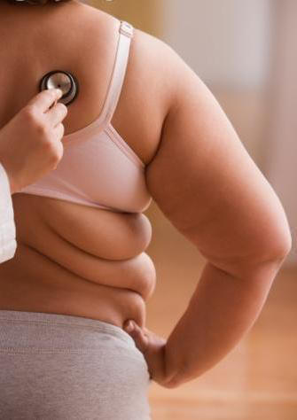 cirugia_bariatrica-obesidad.JPG
