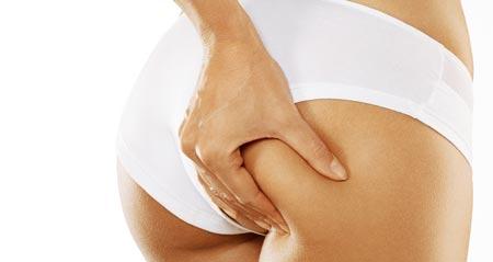 Celulitis, piel de naranja, adiposis localizada y nódulos dolorosos