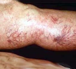 flebitis-periflebitis-obesidad-celulitis-tipos.jpg