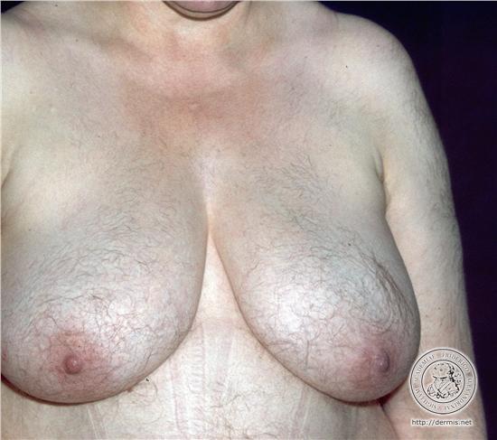 hirsutismo-obesidad-secuelas-problemas-dermicos-tratamiento-clinica-centro.jpg