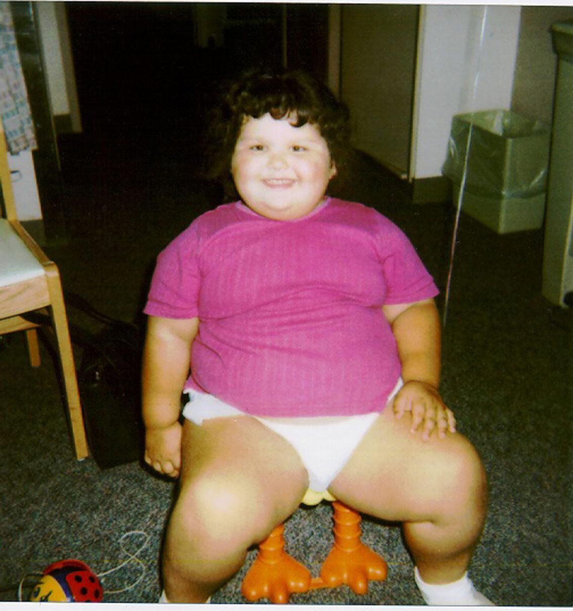 Tipos de obesidad: Obesidad del sedentarismo
