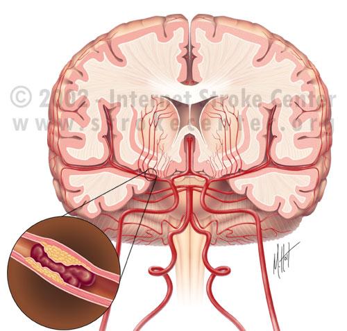 trombo-obesidad-cerebro-vasos-sanguineos-accidentes-secuelas.jpg